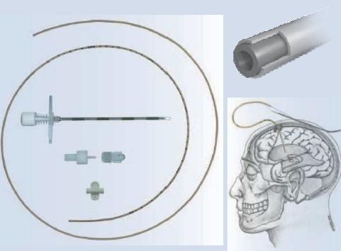 Externé komorové drenáže (EVD) a meranie intrakraniálneho tlaku (ICP)